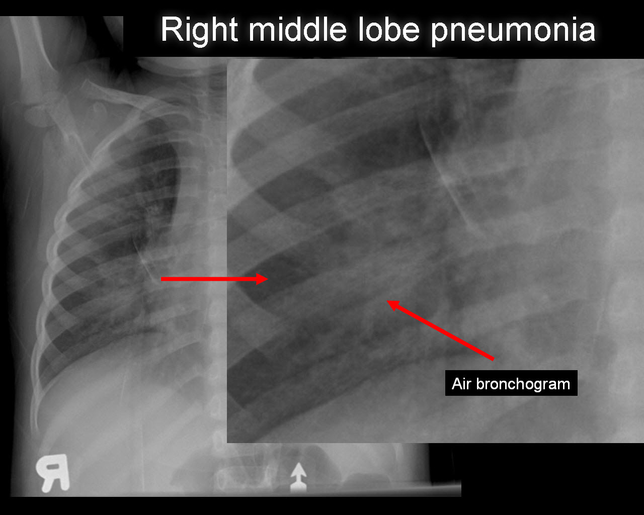 Pneumonia When To Go To Emergency Room