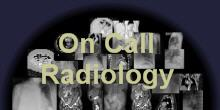 On Call Radiology - Emergency Room and on call Radiology cases and teaching files